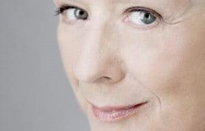 """Pérdida de densidad Más corriente en mujeres de edad postmenopáusica, la pérdida de densidad se manifiesta en la superficie en forma de piel más delgada y débil. """"Al contrario que las arrugas o la pérdida de volumen, la pérdida de densidad afecta a toda la cara en lugar de asentarse en determinadas zonas"""". A menudo se asocia a arrugas más profundas y aparece junto a una disminución de la luminosidad y una tendencia a una piel más apagada."""