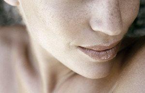 Parte inferior de la cara de una mujer con pecas.