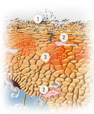 Eucerin Piel Atópica Dermatitis Atópica En Los Cuerpos De Los Niños